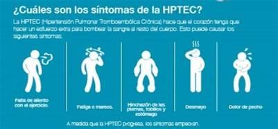 Hipertension-pulmonar-enfermedad-pronostico-pobre_CLAIMA20160505_0043_17